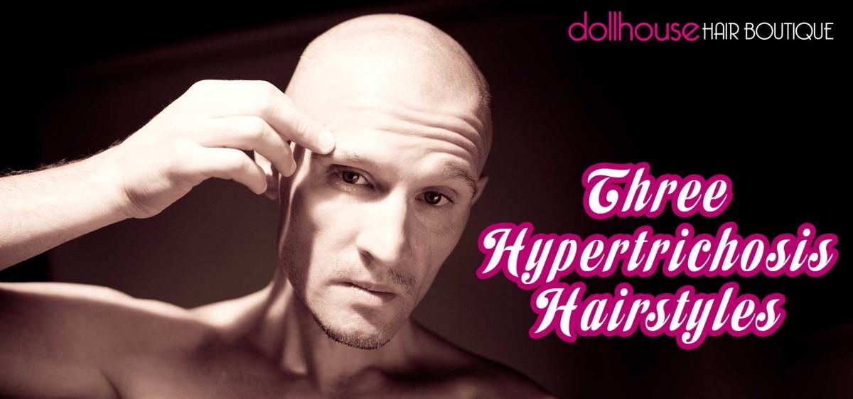 Three-Hypertrichosis-Hairstyles